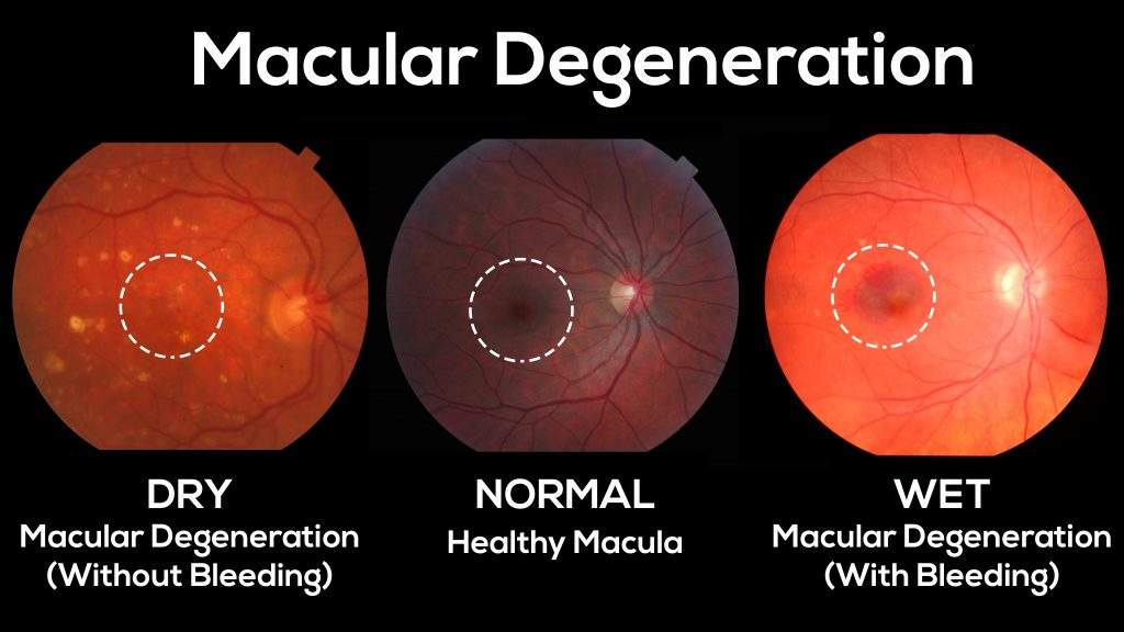 macular degeneration optometrist
